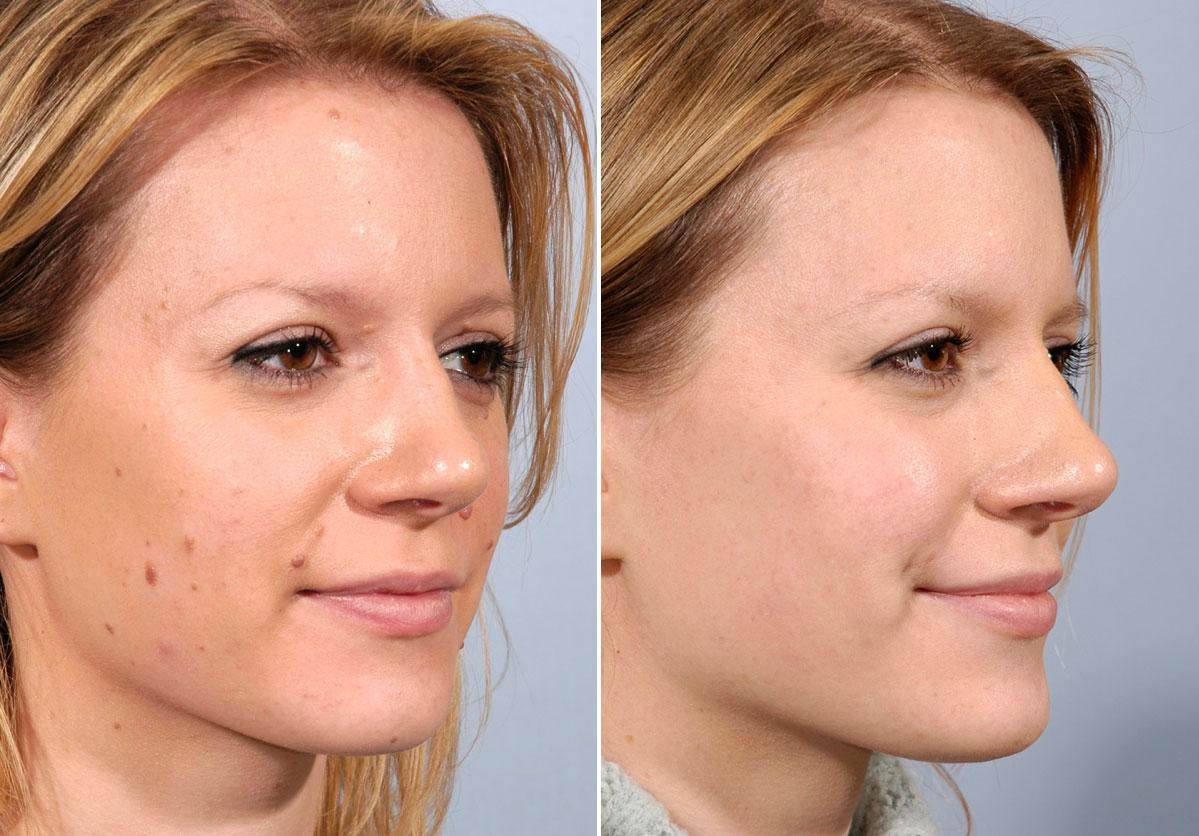 Cosmetic facial mole removal