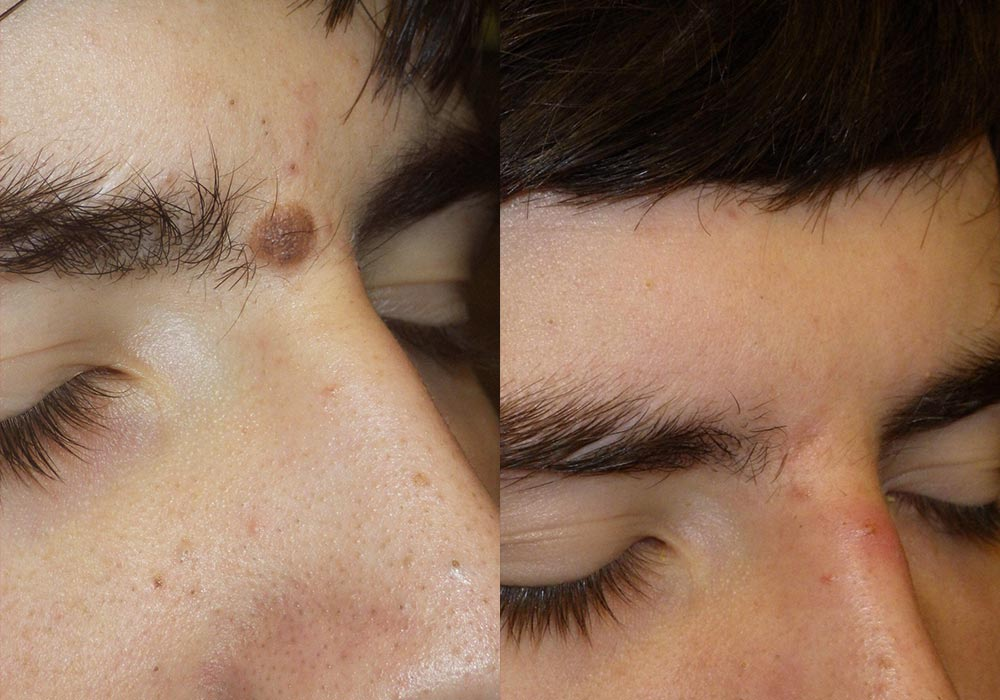 mole removal before & after