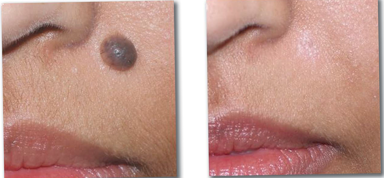 things to know before mole removal