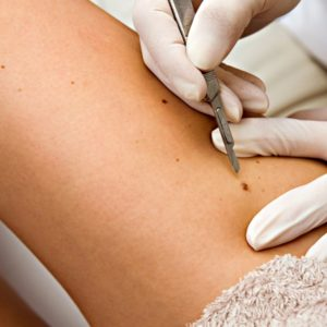 home remedies mole removal