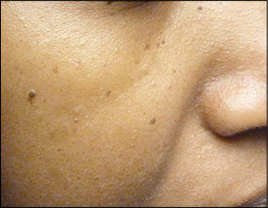 dermatosis papulosa nigra san diego